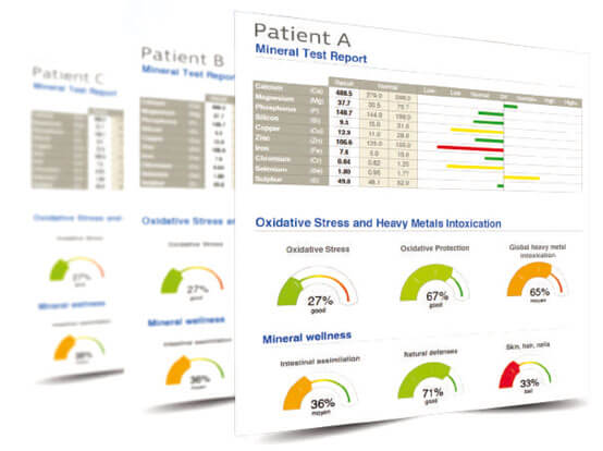 Oligoscan - Innowacja w diagnostyce